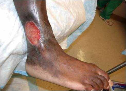 Sickle Cell Leg Ulcer