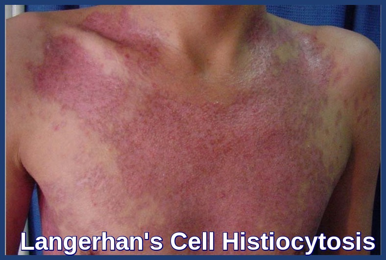 Langerhan's Cell Histiocytosis