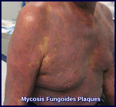 erythematous plaques in advancing mycosis fungoides