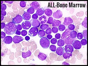 ALL-Bone Marrow
