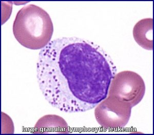 large granular lymphocytic leukemia