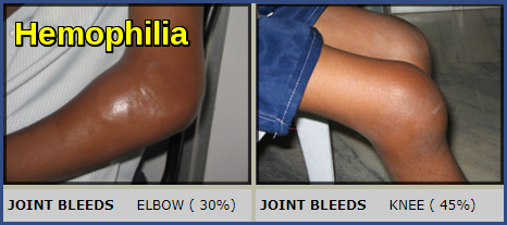 Hemophilia-Joint Bleeds