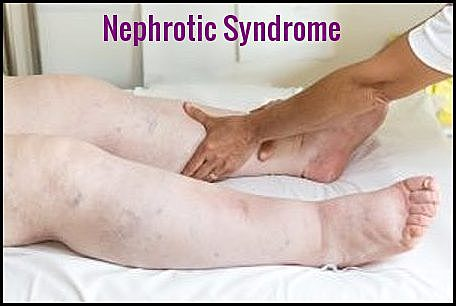Amyloidosis - Nephrotic Syndrome