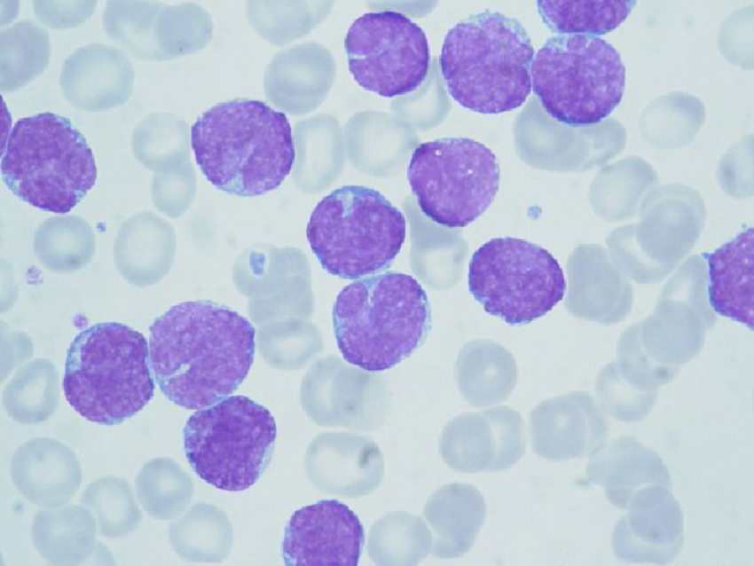 Approach to Lymphocytosis